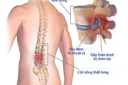 Phẫu thuật lấy nhân đệm chữa thoát vị đĩa đệm những điều cần biết - ảnh 1