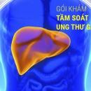 Tầm soát ung thư gan