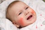 Một số bệnh dị ứng hay gặp ở trẻ em