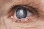 Bệnh đục thủy tinh thể: Nguyên nhân, triệu chứng và phân loại