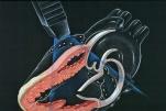 6 phương pháp siêu âm tim thường dùng