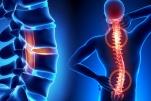 Ý nghĩa chụp cộng hưởng từ (MRI) cột sống ngực