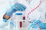 Xét nghiệm gen CY2C19 trong điều trị thuốc Clopidorgel  trong can thiệp tim mạch