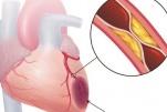 Chăm sóc và giáo dục sức khỏe cho bệnh nhân bệnh mạch vành
