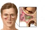 Chụp X Quang Hirtz trong chẩn đoán viêm xoang