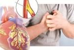 Bệnh mạch vành là gì, Biểu hiện, nguyên nhân và cách điều trị