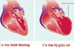 Bệnh cơ tim giãn: biểu hiện, nguyên nhân và cách điều trị