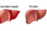 Dấu hiệu nhận biết bệnh xơ gan và cách chăm sóc