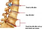 Điều trị thoát vị đĩa đệm qua da dưới X quang tăng sáng hiện quả