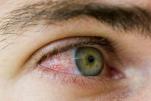 Viêm màng bồ đào gây ra những vấn đề gì về mắt?