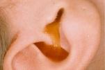 Viêm tai giữa cấp ứ mủ có nguy hiểm không và điều trị như thế nào?