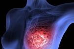 Cách điều trị ung thư vú di căn hiệu quả nhất hiện nay