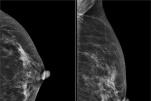 Mô vú đặc là gì? Nguyên nhân và chẩn đoán điều trị