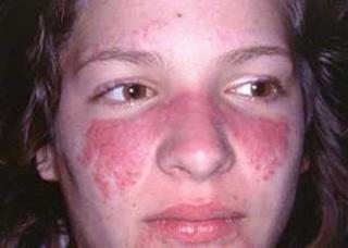 Ảnh 3 của Lupus ban đỏ
