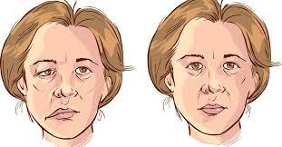 Ảnh 5 của Lupus ban đỏ