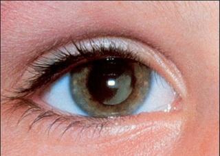 Ảnh 1 của Nấm mắt