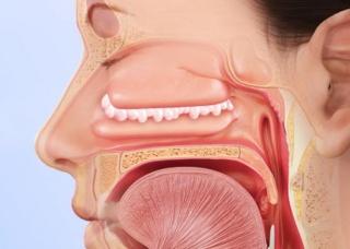 Ảnh 1 của Nasal polyps