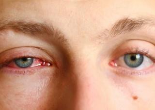 Ảnh 2 của Nấm mắt