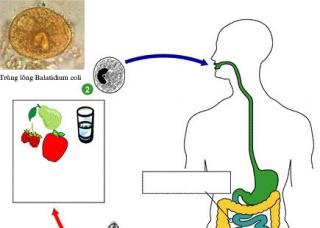 Ảnh 2 của Nhiễm trùng lông Balantidium