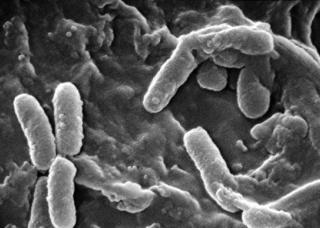 Ảnh 4 của Nhiễm trực khuẩn Pseudomonas