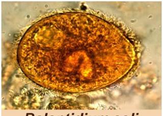 Ảnh 3 của Nhiễm trùng lông Balantidium