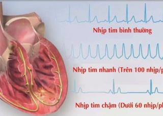 Ảnh 4 của Nhịp tim nhanh