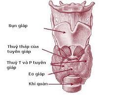 Ảnh 4 của Neurofibromatosis