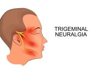 Ảnh 4 của Neuralgia