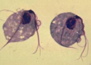 Ảnh 1 của Nhiễm trùng roi sinh dục nữ