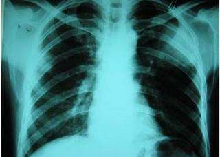 Ảnh 4 của Nhiễm vi khuẩn Nocardia