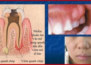 Ảnh 3 của Nhiễm trùng răng