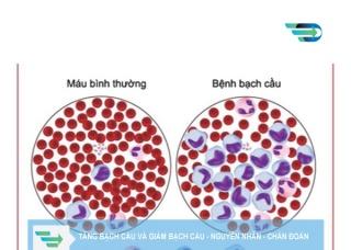 Ảnh 3 của Nhiễm khuẩn tăng bạch cầu đơn nhân