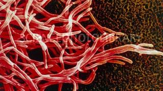 Ảnh 1 của Nhiễm vi khuẩn Nocardia