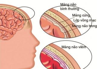 Ảnh 1 của Não