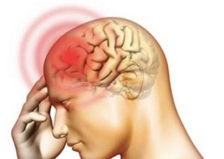 Ảnh 2 của Não