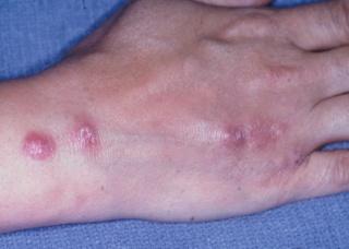 Ảnh 5 của Nhiễm nấm sâu Histoplasmosis