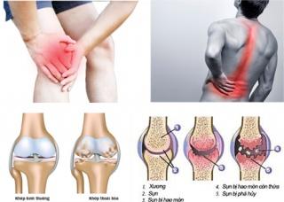 Ảnh 1 của Pyogenic arthritis