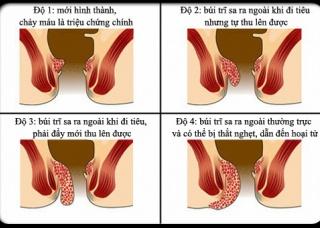 Ảnh 2 của Prolapsus rectal