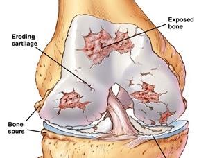 Ảnh 2 của Pyogenic arthritis