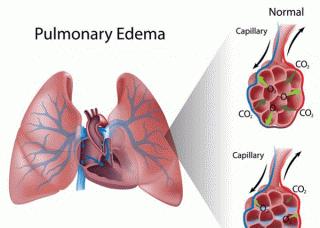 Ảnh 4 của Phù phổi (Tràn dịch trong phổi)