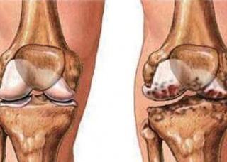 Ảnh 3 của Pyogenic arthritis
