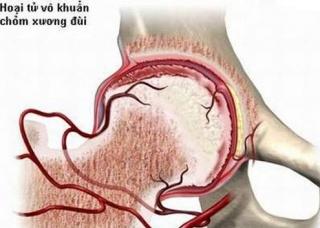 Ảnh 4 của Pyogenic arthritis