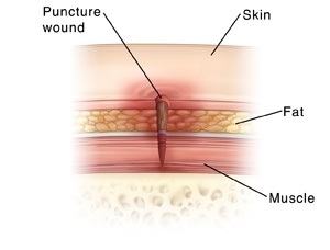 Ảnh 1 của Puncture Wound