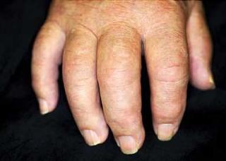 Ảnh 1 của Psoriatic Arthritis