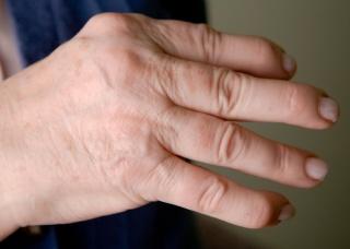 Ảnh 2 của Psoriatic Arthritis