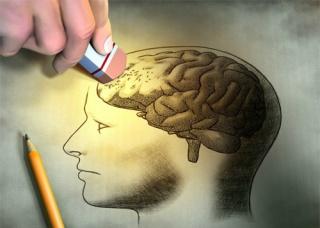 Ảnh 1 của Rối loạn trí nhớ