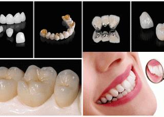 Ảnh 1 của Răng giả