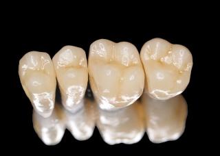 Ảnh 2 của Răng giả