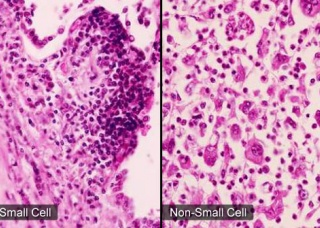 Ảnh 1 của Small-cell Carcinoma