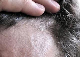 Ảnh 1 của Sưng da đầu